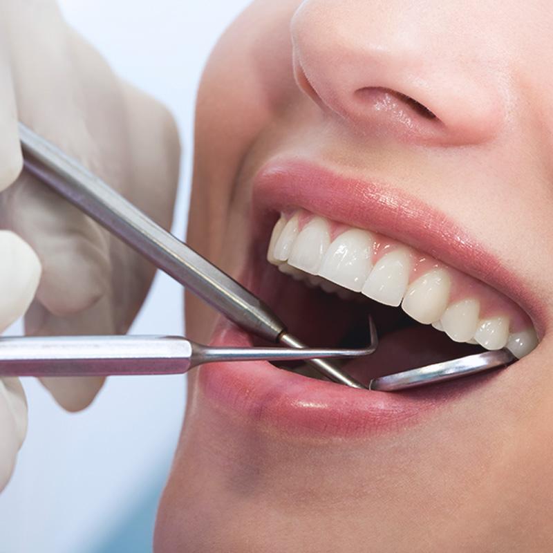 牙周病原因專業醫師來解釋,其實牙周病洗牙就可以預防了!