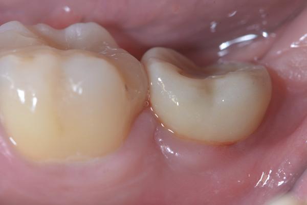 植牙牙齦割傷 03