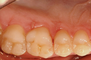 牙齦割傷-01