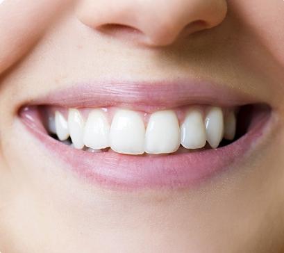 植牙好嗎?植牙小學堂帶你認識植牙是什麼