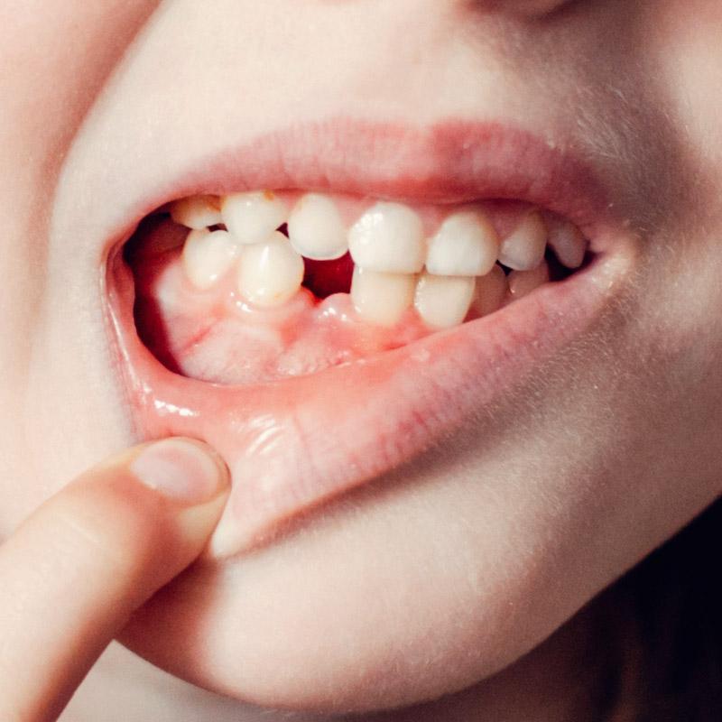 植牙4萬不要太高興,小心便宜植牙不給力