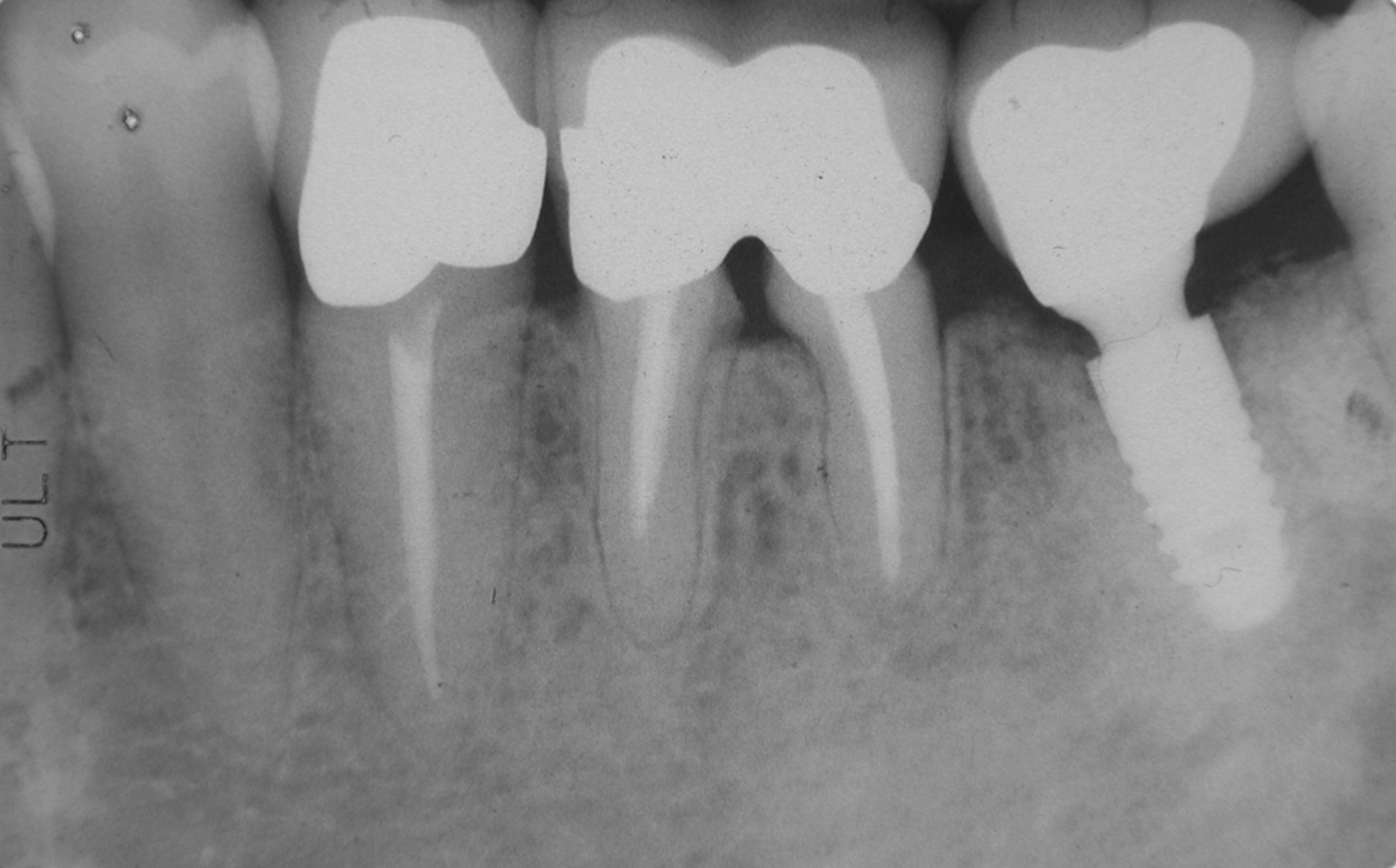 齒槽骨是什麼?您知道齒槽骨流失有多嚴重嗎?