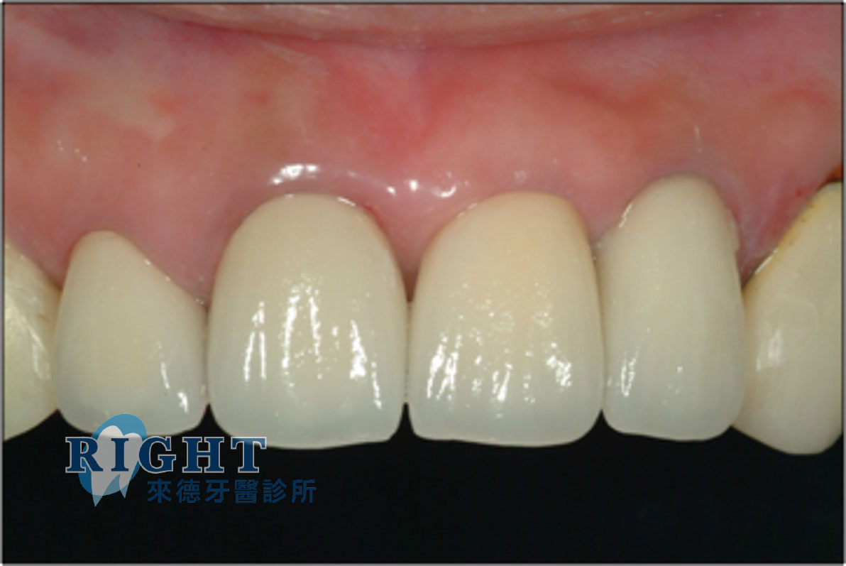 齒槽脊保存-案例1