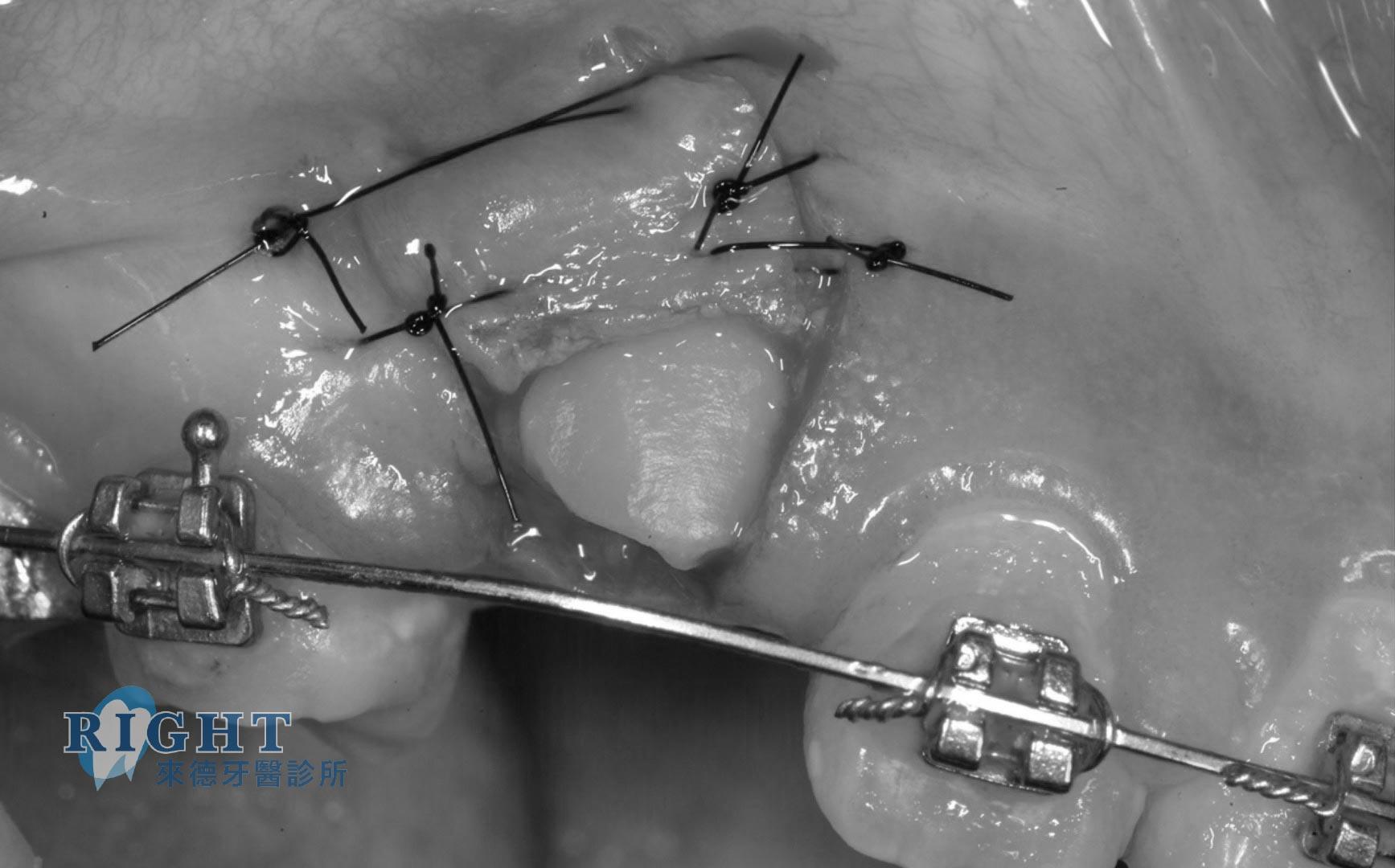 矯正牙周手術-案例1
