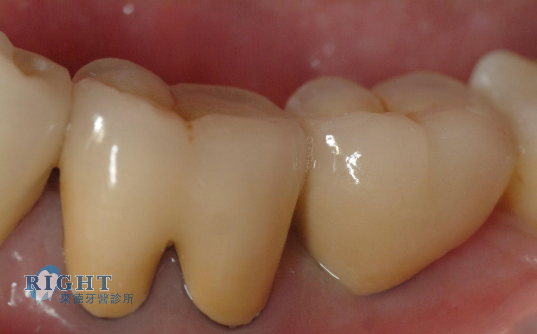 牙周植牙重建-案例1