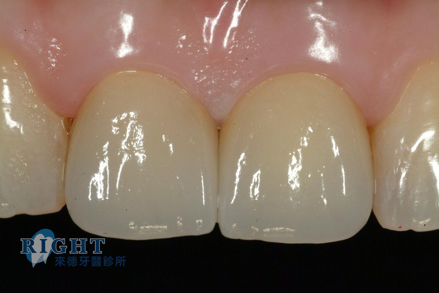 牙根管假牙修復-案例1