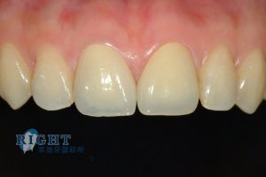 rootcanal-case2-2