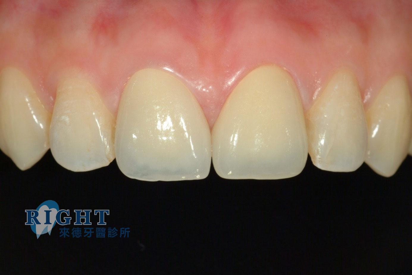 牙根管假牙重建-案例1