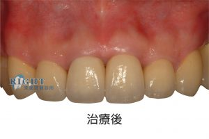 rootcanal-case4-3