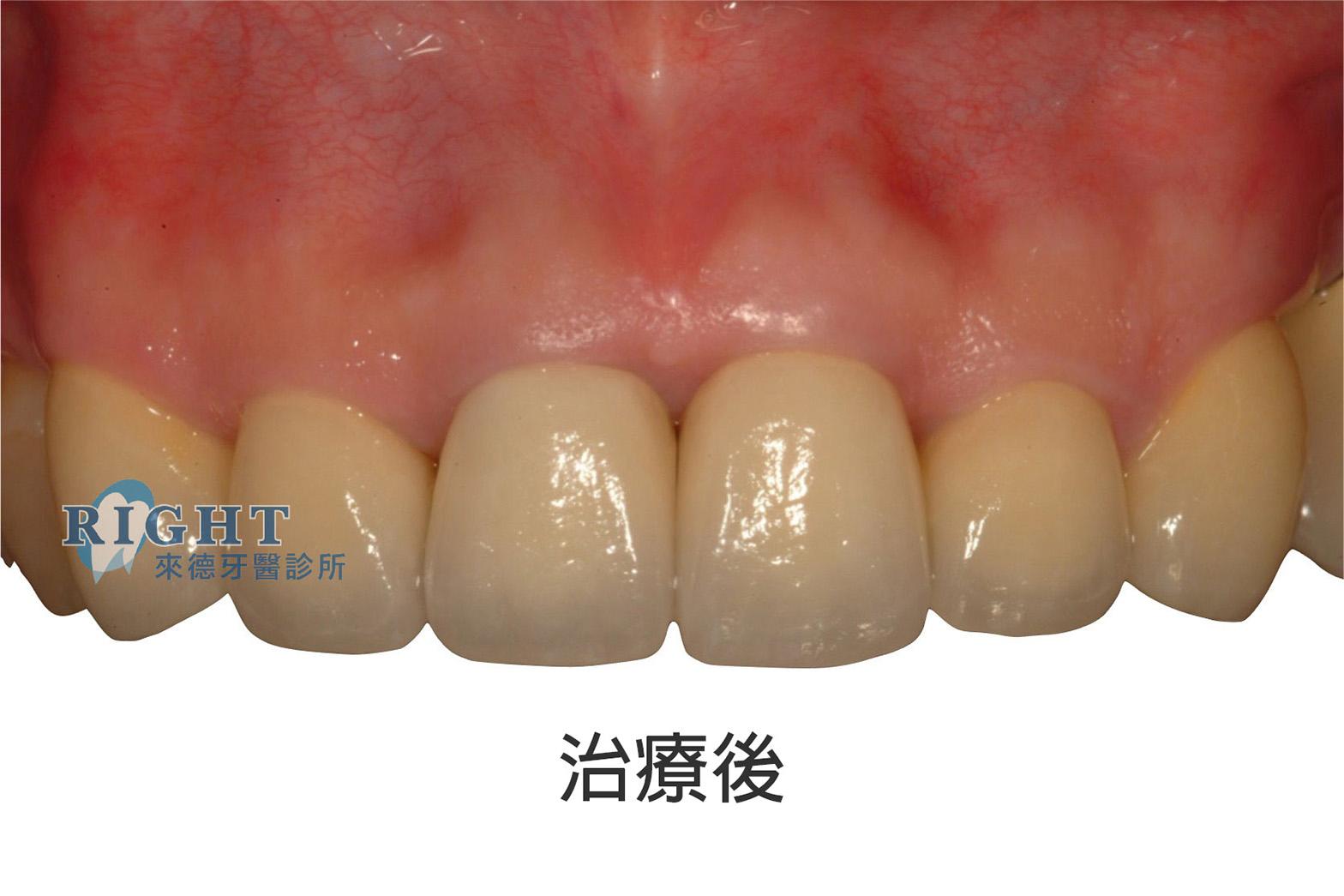 牙根管假牙重建-案例2