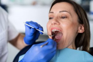 a-woman-has-a-dental-check-up-in-dentist-surgery-VAVTZ6Q (1)