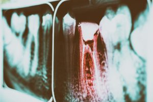 pain-of-tooth-decay-on-teeth-x-ray-TP5AF56 (1)