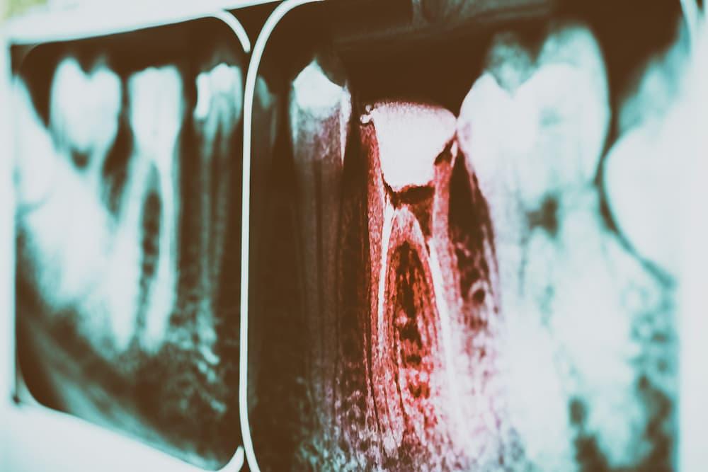 蛀牙一定要抽神經嗎?快看醫師怎麼說
